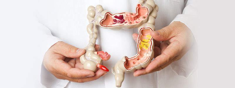 Anorectal - Gastroenterologist in Lahore