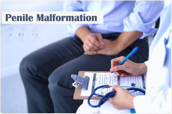 Penile-Malformation-treatment.jpg