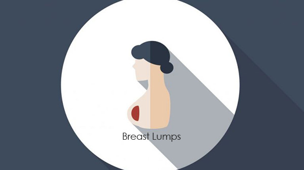 Breast-Lumps.jpg