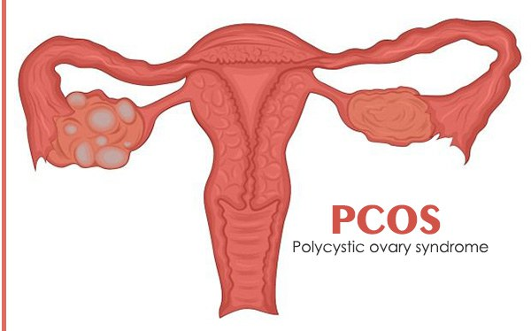 PCOS-treatment.jpg