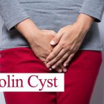 bartholin cyst treatment