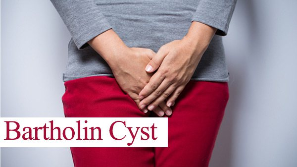 bartholin-cyst-treatment.jpg